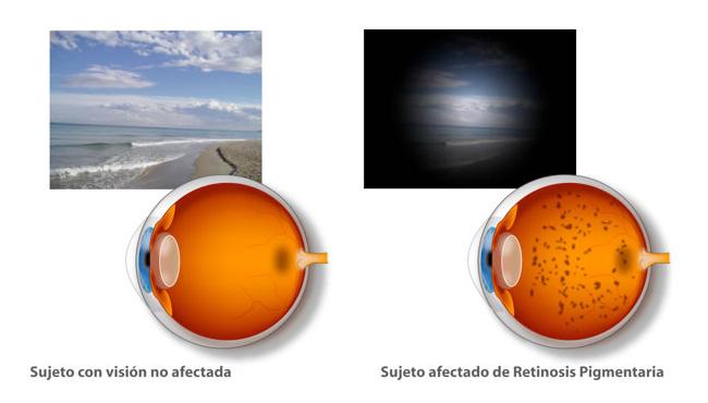 bidons-egara-retinosis-pigmentaria